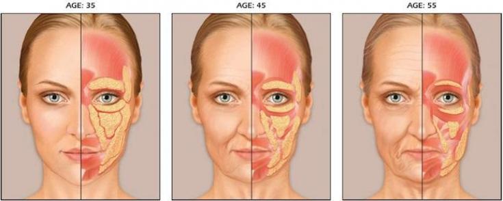 рис 2. старение жировых пакетов лицо